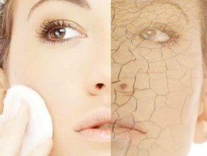 perawatan alami madu untuk wajah kering yang patut dicoba