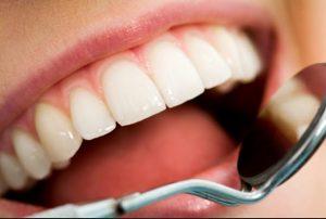 manfaat madu untuk mengobati gigi berlubang secara alami