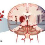 Terapi Menggunakan Madu untuk Penderita Stroke yang Aman